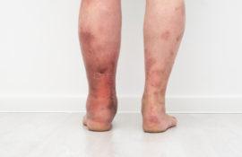 ketahui penyebab edema pada pasien gangguan ginjal