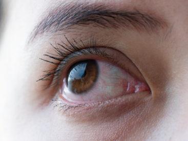 penyakit mata konjungtivitis